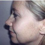 blepharoplasty side view of female
