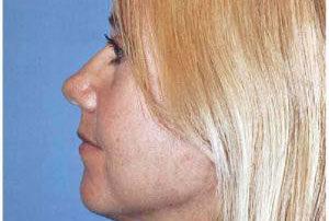 blepharoplasty female patient