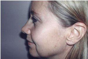 facelift side view of female patient