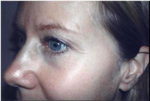 facelift female patient
