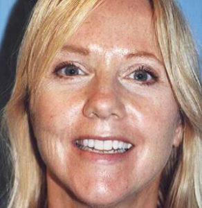 facelift patient female