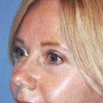 blepharoplasty patient female