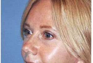 blepharoplasty patient female