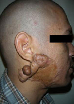 keloid-removal before image