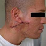 keloid-removal male patient