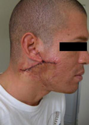 keloid-removal male patient
