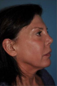 mid-facelift side view of female patient