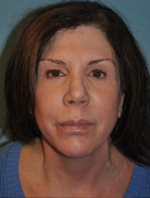 mid-facelift female patient