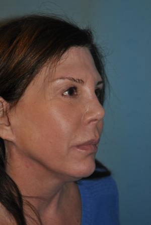 mid-facelift female patient