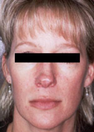 rhinoplasty female patient