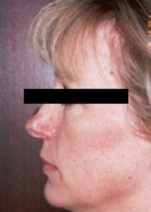 rhinoplasty patient female side view