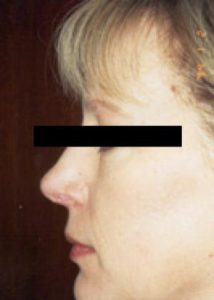 rhinoplasty patient female