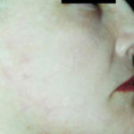 scar-revision