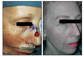 Repair of Nasal Cancer Defect