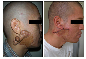 Scar Tissue Growth Removal